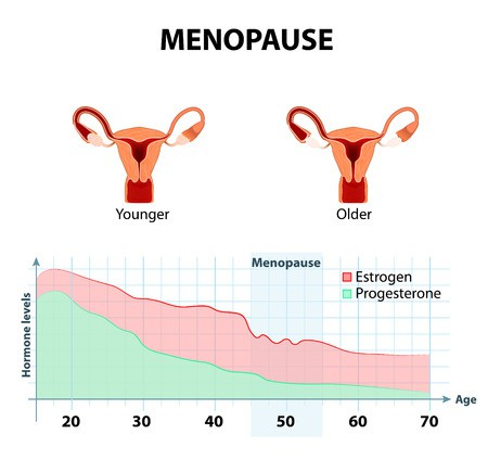 Onset of Menopause