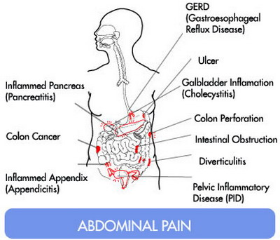 Appendix Pain Location And Symptoms on pancreas location in female