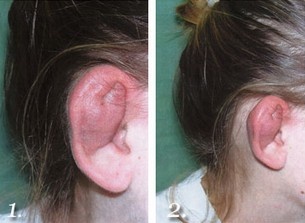 Cartilage Ear Piercing Information Procedure Healing