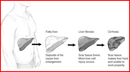 Liver Pain | Pictures, Location, Causes, Symptoms and ...