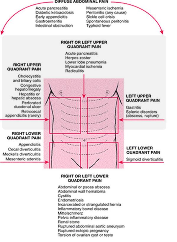 abdominal pain regions upper