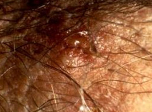 genital herpes blisters picture