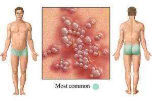 herpes simplex virus pictures computer