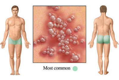 genital herpes pictures on men