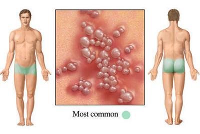 genital herpes pictures on men