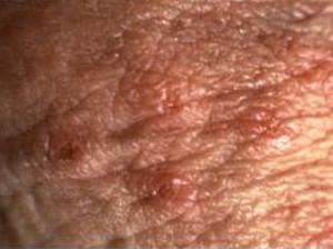 herpes genetalis blisters