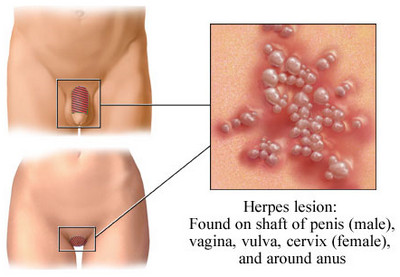 herpes pictures male female