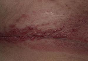 mild genital herpes
