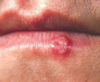 herpes virus mouth lip