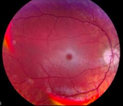 tay-sachs retina eye