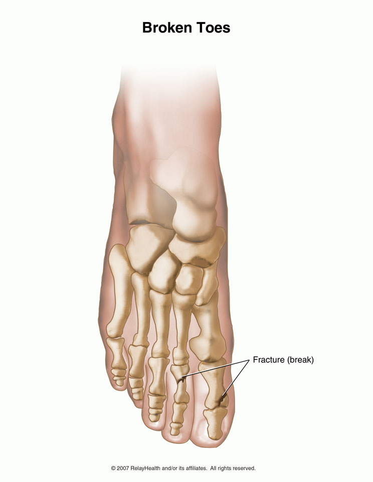 Broken Toe – Symptoms, Diagnosis, Treatment and Pictures