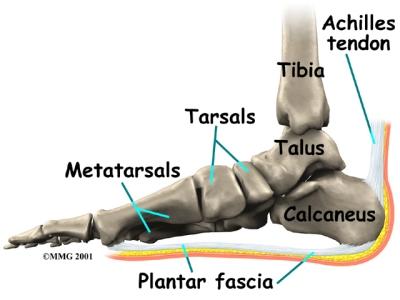heel pain
