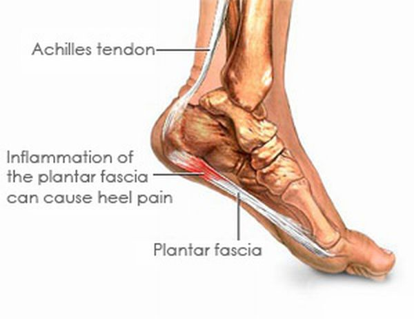 heel pain pictures