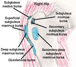 trochanteric bursitis