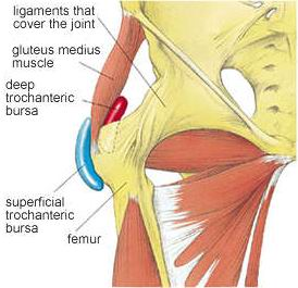 trochanteric bursitis pictures