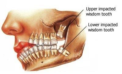 wisdom teeth pictures