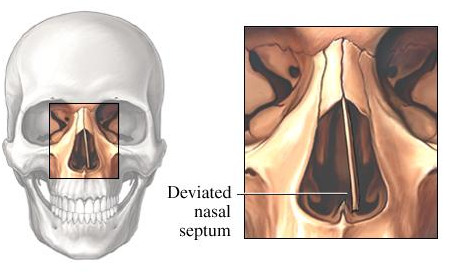 Deviated Septum bone nasal