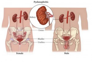 Acute and Chronic Pyelonephritis