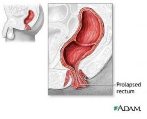 prolapsed rectum