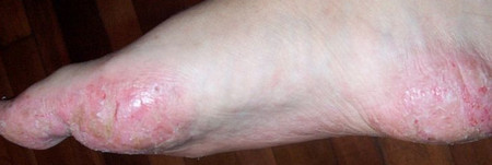 Dyshidrotic Dermatitis on feet