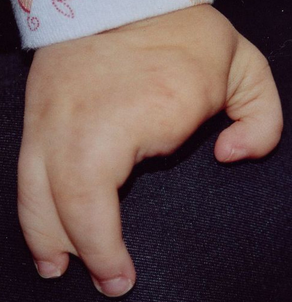 Ectrodactyly picture