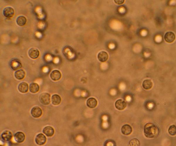 pyuria microscopic examination