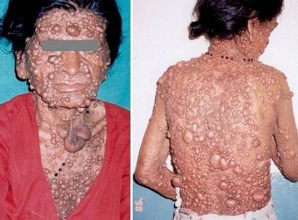 hamartomas, symptom of Cowden Syndrome image
