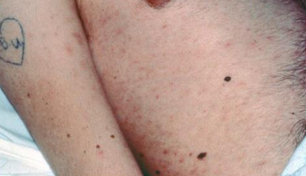 hiv rash picture