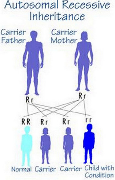 hurler syndrome inheritance chart