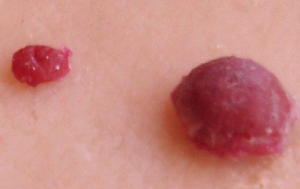 Cherry Angioma photo