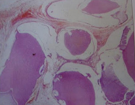 ODONTOMA (COMPOUND) histology picture