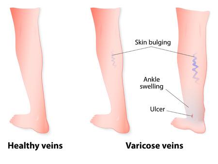 19 Weeks Pregnant Varicose Veins
