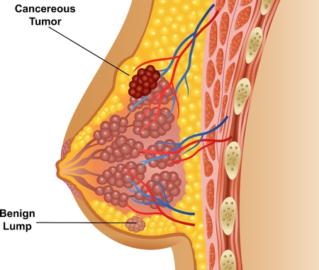 breast pain | causes, symptoms, diagnosis, treatment and health tips, Skeleton