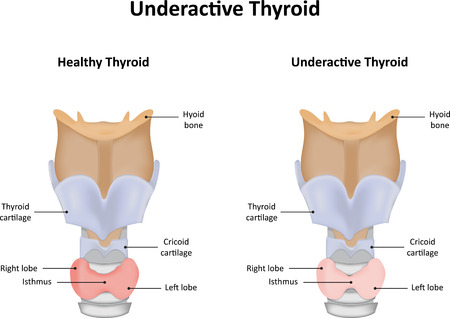 Pathophysiology of Hypothyroidism