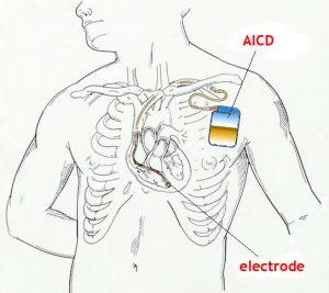 AICD Implanted Cardioverter Defibrillator