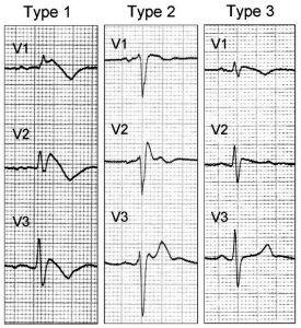 Brugada Syndrome type 1,2,3