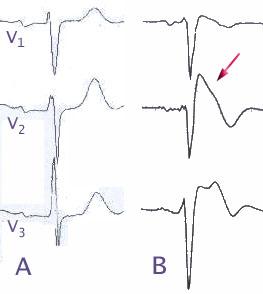 Brugada Syndrom EKG Schema